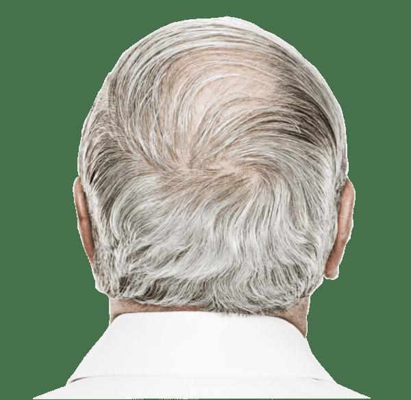 Bild eines alten Männerhinterkopfs